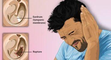 कान के परदे के इलाज के बारे में जाने