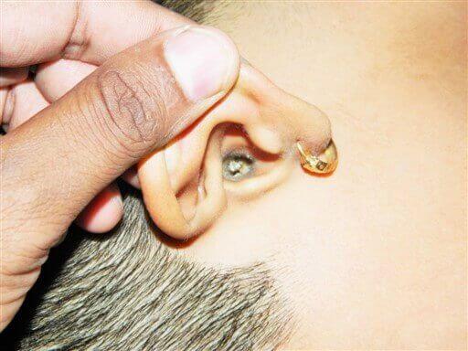 जमा हुआ कान का मैल blog image