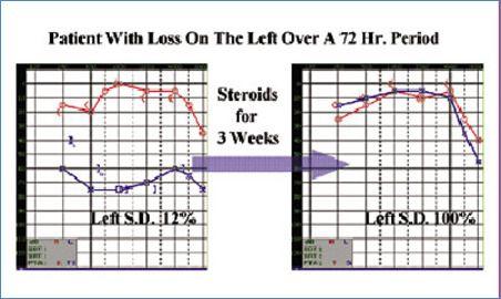 स्टेरॉयड उपचार के बाद सुनवाई में सुधार की ऑडियोग्राम रिपोर्ट blog image