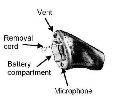 उच्च आवृत्ति बहरेपन के लिये वेंट के साथ आईटीसी कान की मशीन blog image