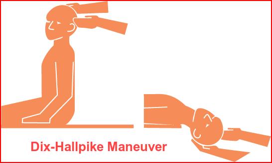 मानक डिक्स-हॉलपाइक शारीरिक क्रिया blog image