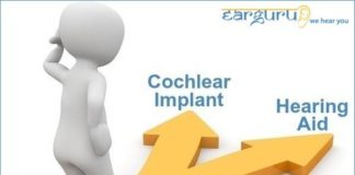 Cochlear Implant vs Hearing Aid. What's Best