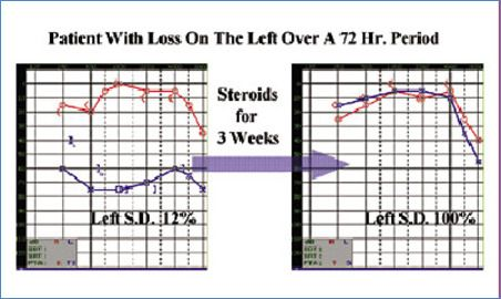 Audiogram Report of improvement in hearing after treatment blog image