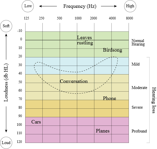 Audiogram Chart showing audible frequency range