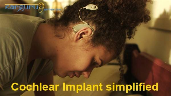 Cochlear Implant Simplified blog feature image