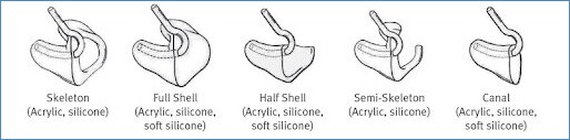 Different Types of Earmolds blog image