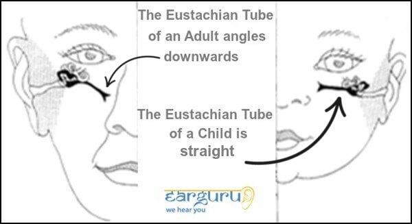 Eustachian Tube Comparison of Child and Adult blog image