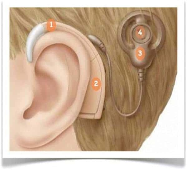 External parts of the Cochlear Implant blog iamge