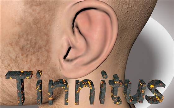 Must Read Guide to Tinnitus – Symptoms, Causes and Treatment blog image