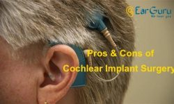 Pros and Cons of Cochlear Implant Surgery