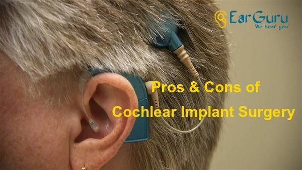 Pros and Cons of Cochlear Implant Surgery blog feature image