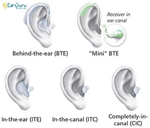 Styles or Types of Hearing Aids blog image