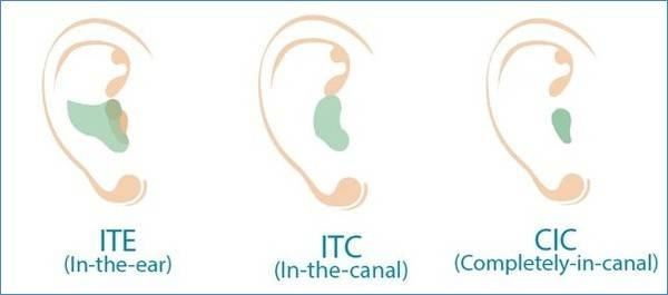 Types of In the Ear Hearing Aids image