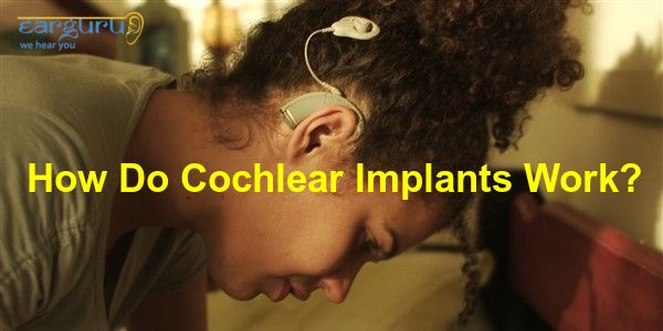 How Do Cochlear Implants Work blog feature image